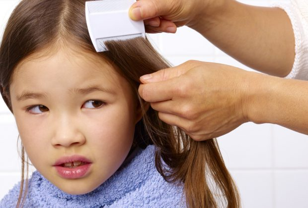Getting Rid of Your Child's Head Lice
